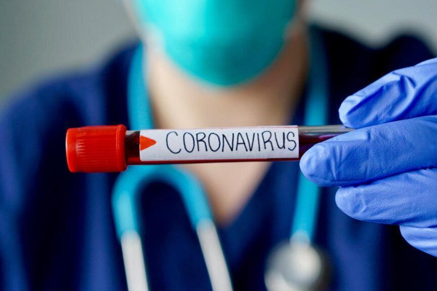 تاثیر گرما بر ویروس کرونا ، ویروس از لباس آلوده منتقل می شود؟