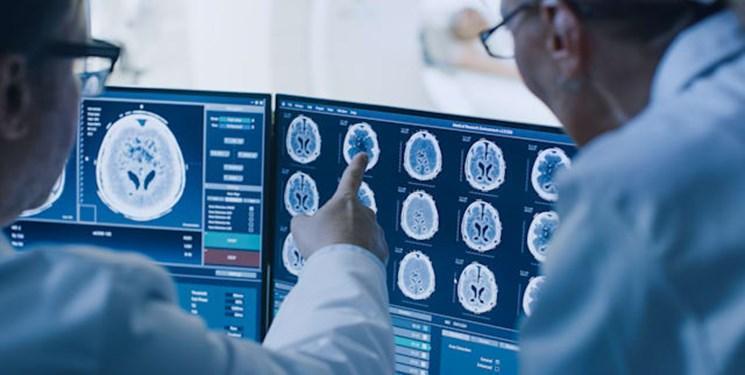 آسیب مغزی؛ شایع ترین معضل بیماران بدحال کرونایی